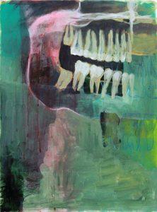 Adrian-Johnston-NewMexico-Wisdom-Teeth